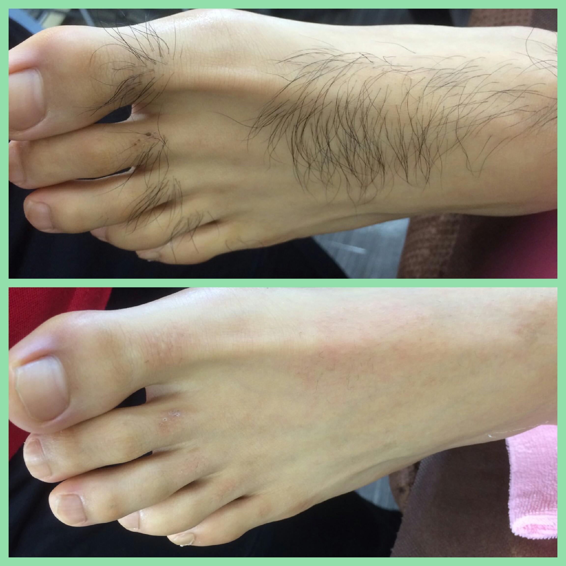 足の甲症例
