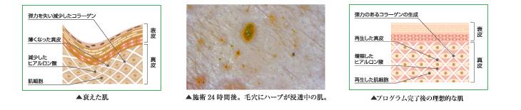 プログラム実行中の皮膚は